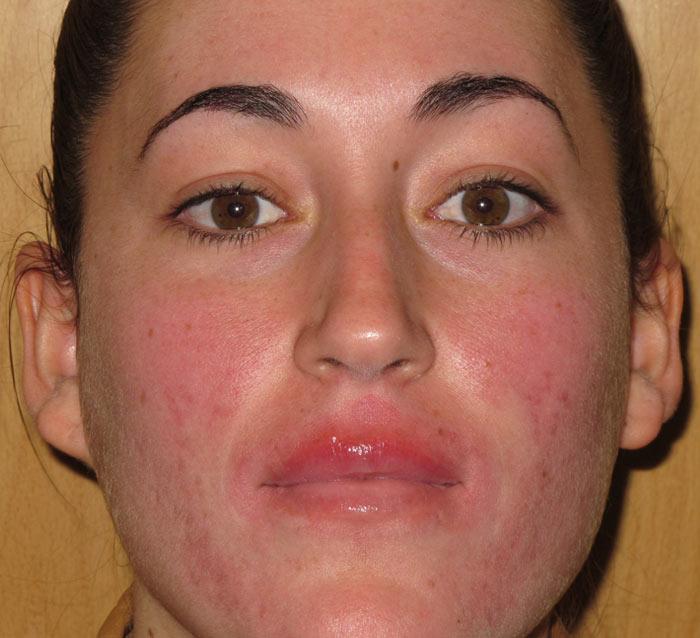 Eliminar rojeces y cicatrices residuales del acné - Antes | Farmacia Jiménez