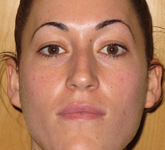 Eliminar rojeces y cicatrices residuales del acné