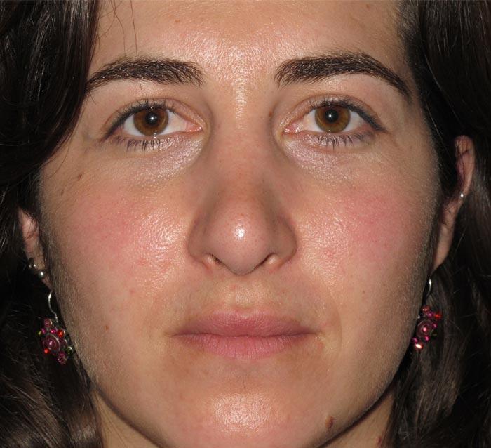 Mejorar textura, tono y luminosidad del rostro - Antes | Farmacia Jiménez