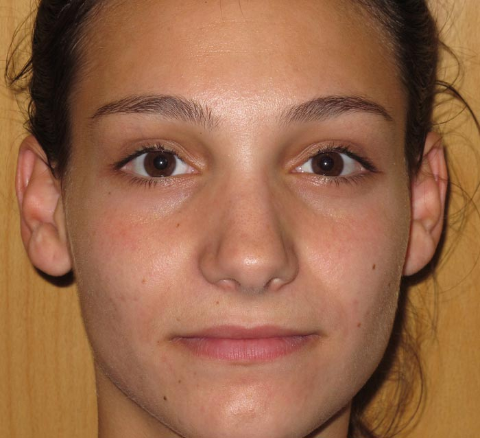 Eliminar acné y cicatrices