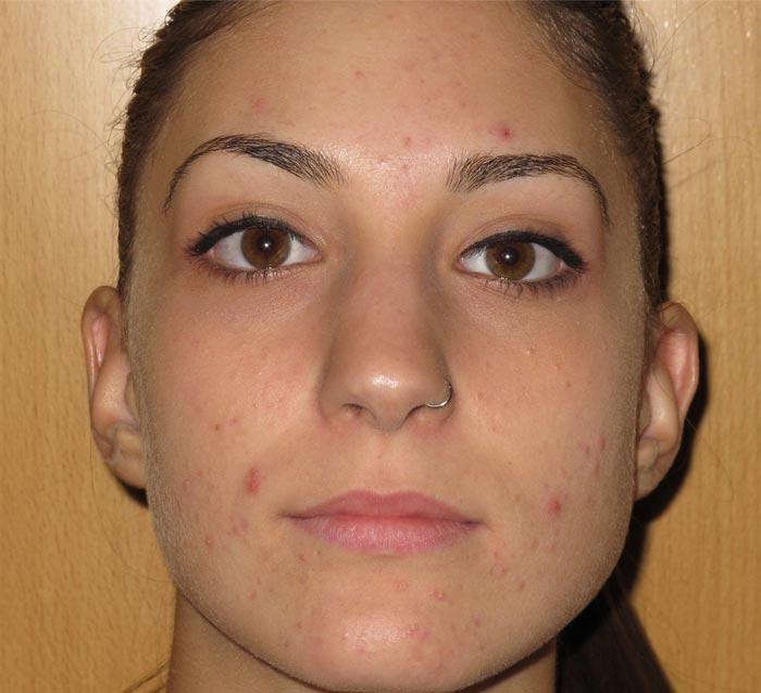 Eliminar acné y piel grasa mejorando la textura de la piel - Antes | Farmacia Jiménez