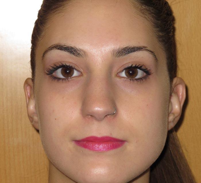 Eliminar acné y piel grasa mejorando la textura de la piel