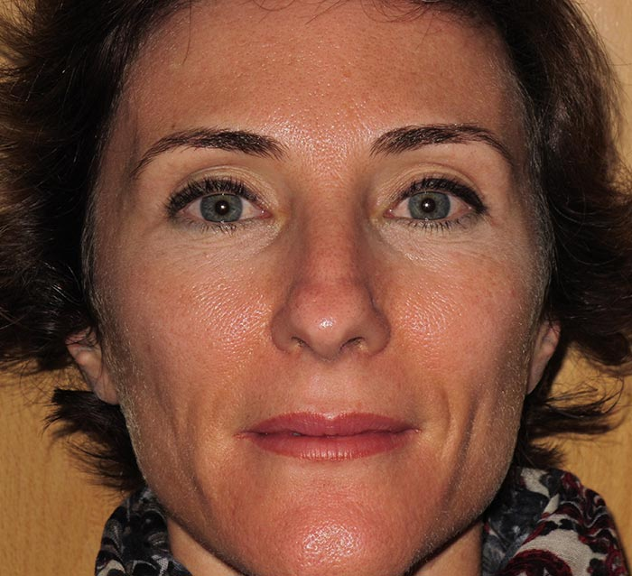 Mejora de la luminosidad, textura  y corrección de la piel grasa - Antes | Farmacia Jiménez