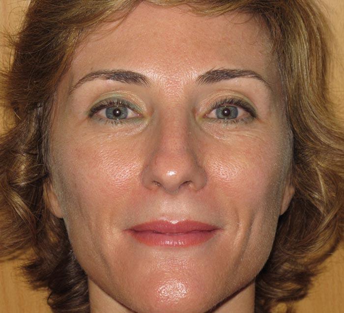Mejora de la luminosidad, textura  y corrección de la piel grasa