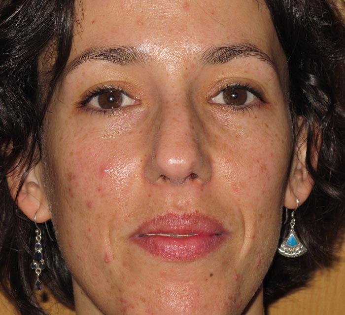 Eliminar el acné, cicatrices residuales y fondo oscuro - Antes | Farmacia Jiménez