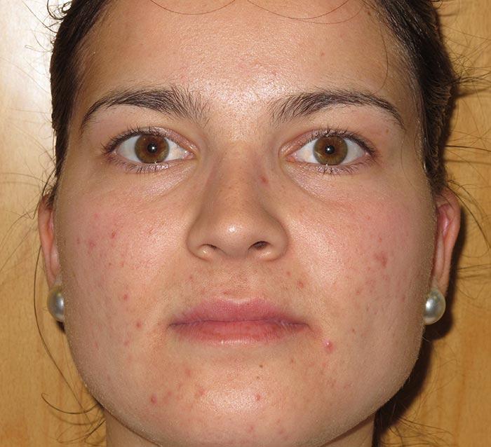 Eliminar el acné y la piel grasa - Antes | Farmacia Jiménez