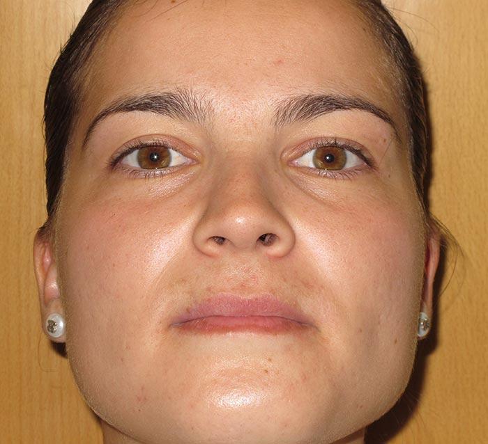 Eliminar el acné y la piel grasa