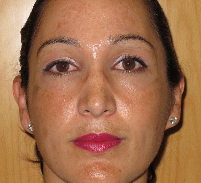 Eliminar manchas y grasa mejorando luminosidad - Antes | Farmacia Jiménez