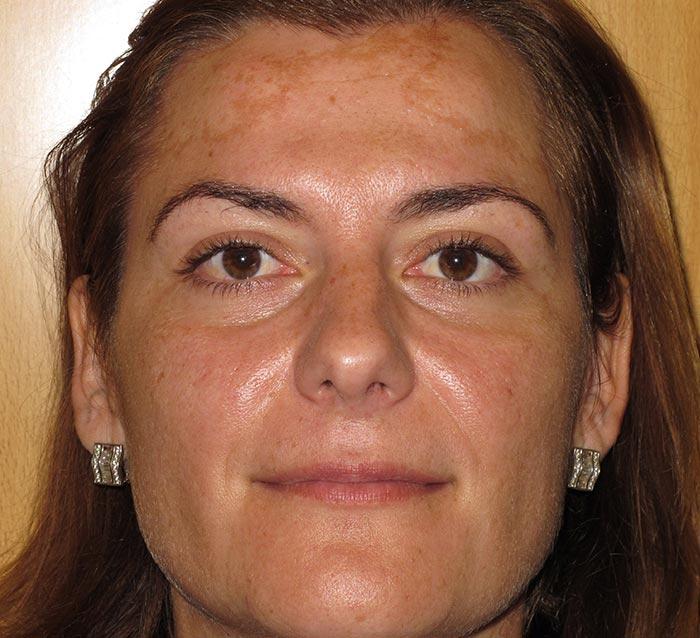 Eliminar manchas y fondo oscuro - Antes | Farmacia Jiménez