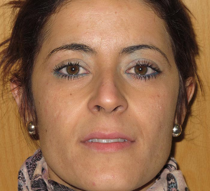 Mejorar la textura y potenciar luminosidad en el rostro - Antes | Farmacia Jiménez