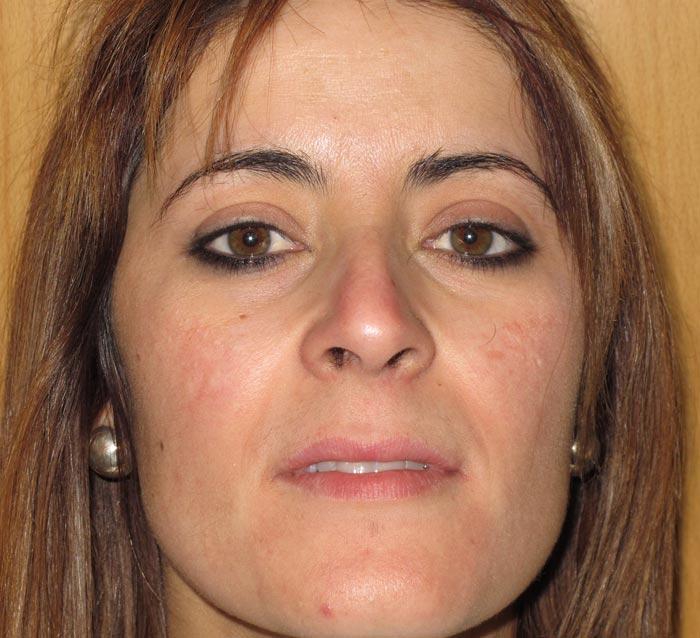 Mejorar la textura y potenciar luminosidad en el rostro