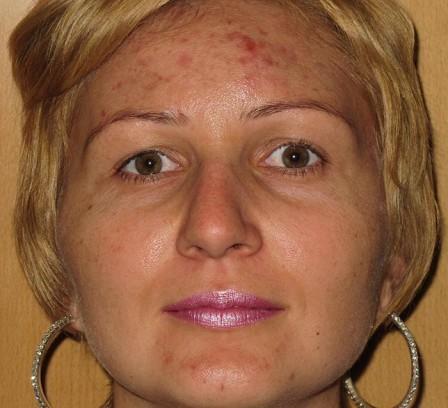 Eliminar grasa, acné y cicatrices residuales - Antes | Farmacia Jiménez