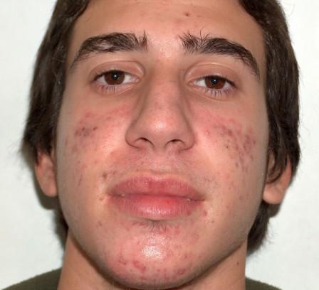Acné con cicatrices residuales - Antes | Farmacia Jiménez