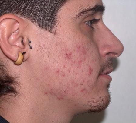 Acné con predominio de cicatrices - Antes | Farmacia Jiménez