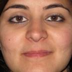 Cicatrices acneicas