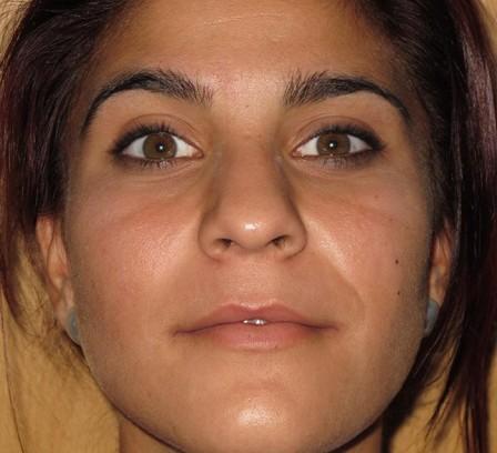 Eliminar acné, granos y cicatrices.