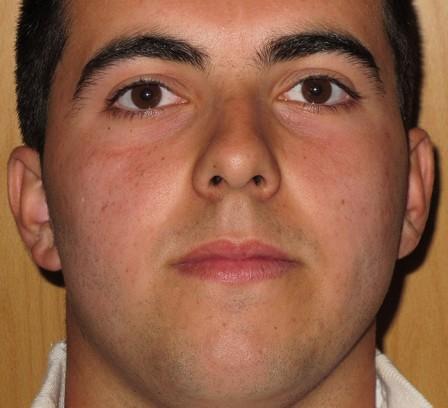 Eliminar acné juvenil, puntos negros y cicatrices residuales - Después | Farmacia Jiménez