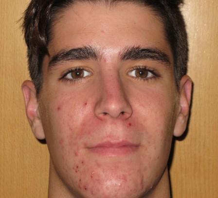 Eliminar acné severo y cicatrices residuales - Antes | Farmacia Jiménez