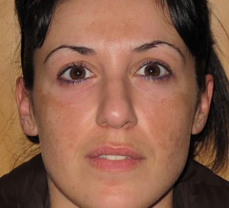 Eliminar manchas de la cara - Antes | Farmacia Jiménez