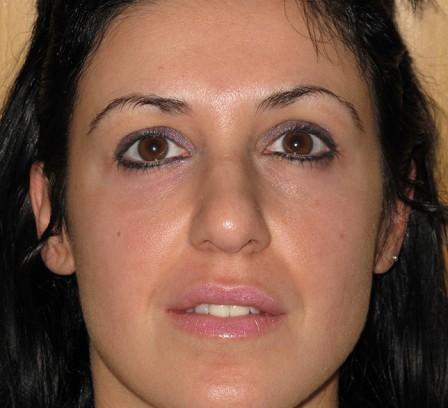 Eliminar manchas de la cara - Después | Farmacia Jiménez