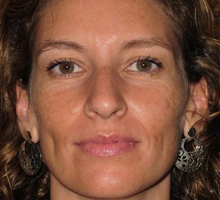 Eliminar manchas, mejorar textura y luminosidad - Antes | Farmacia Jiménez