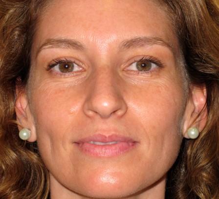 Eliminar manchas, mejorar textura y luminosidad - Después | Farmacia Jiménez