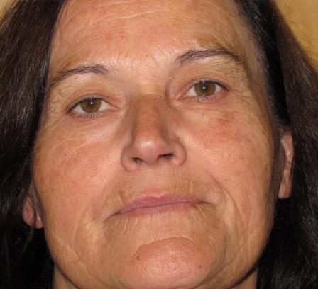 Manchas, mejora de arrugas y piel fotoenvejecida - Antes | Farmacia Jiménez