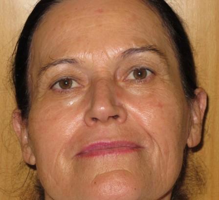 Manchas, mejora de arrugas y piel fotoenvejecida - Después | Farmacia Jiménez