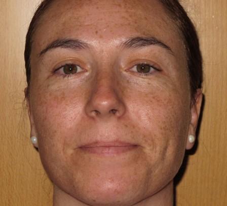 Manchas, pigmentación facial - Antes | Farmacia Jiménez