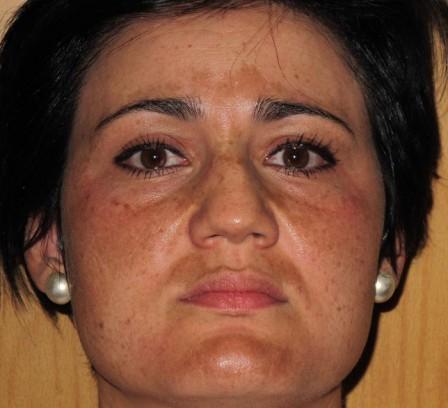 Mejora de manchas en la cara - Antes | Farmacia Jiménez