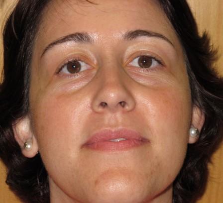Mejora de piel grasa y corrección de cicatrices - Después | Farmacia Jiménez