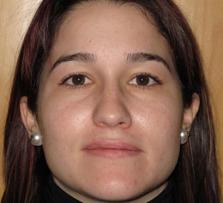 Piel acnéica de la mujer adulta - Antes | Farmacia Jiménez