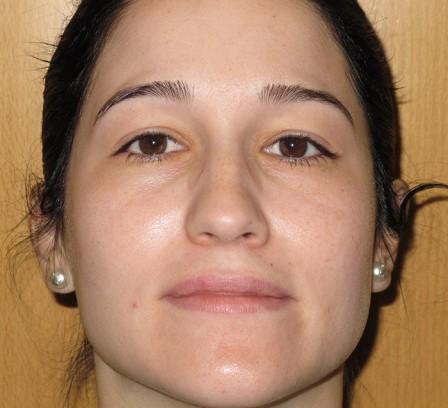 Piel acnéica de la mujer adulta - Después | Farmacia Jiménez