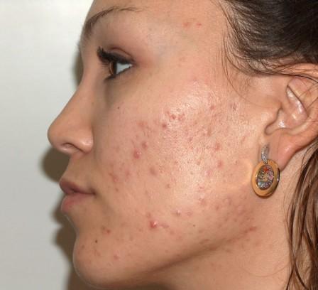 Piel grasa, acné y cicatrices residuales - Antes | Farmacia Jiménez