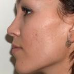 Piel grasa, acné y cicatrices residuales