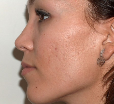Piel grasa, acné y cicatrices residuales - Después | Farmacia Jiménez