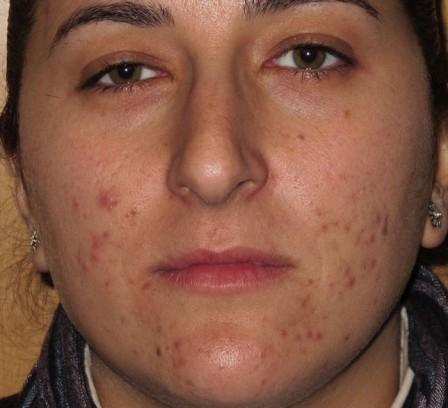 Piel grasa, acné y cicatrices - Antes | Farmacia Jiménez