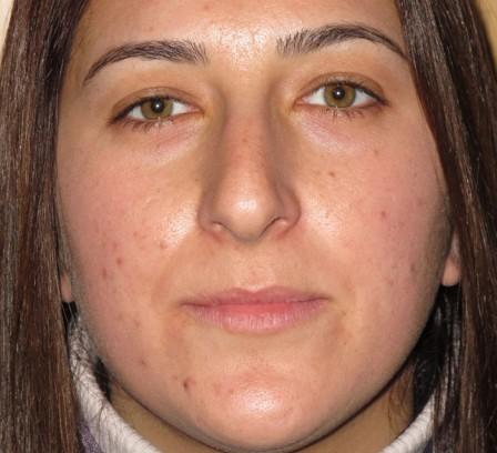 Piel grasa, acné y cicatrices - Después | Farmacia Jiménez