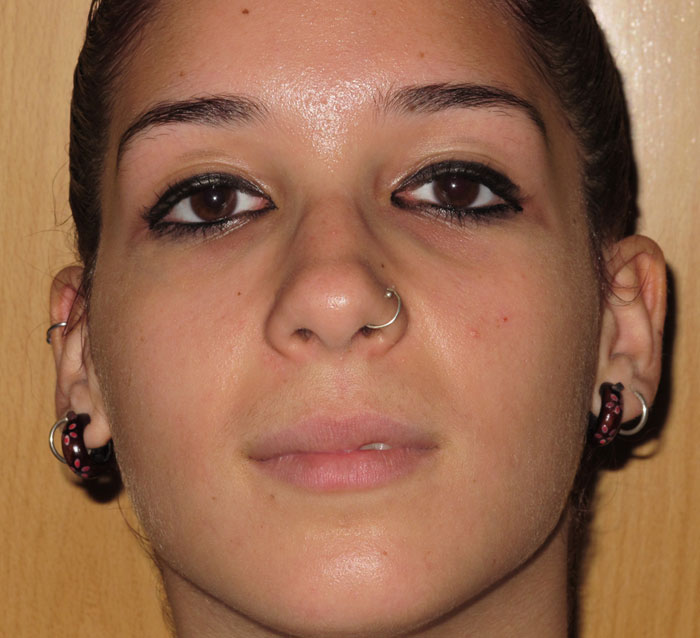 Kontraktubeks de las cicatrices del acné las revocaciones
