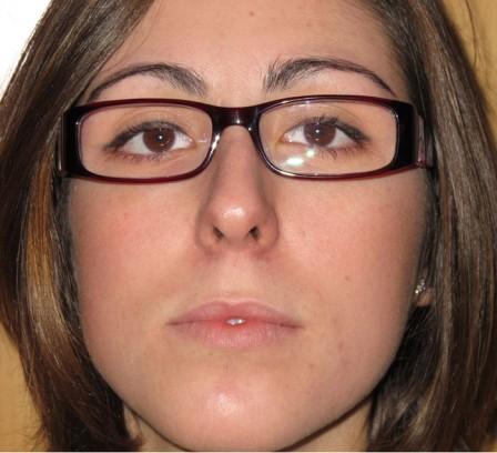 Piel grasa y acné peribucal - Después | Farmacia Jiménez