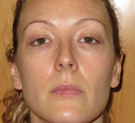 Pigmentación facial, pecas - Después | Farmacia Jiménez