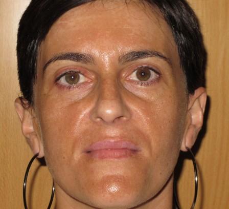 Tratamiento de manchas faciales y luminosidad - Antes | Farmacia Jiménez