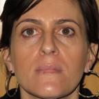 Tratamiento de manchas faciales y luminosidad