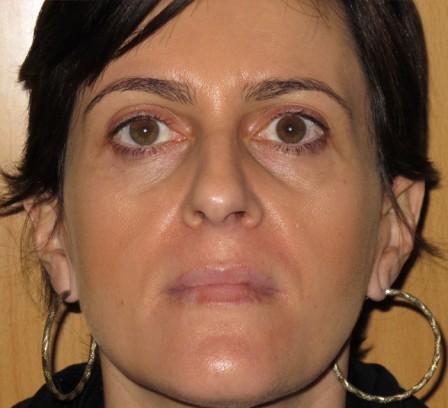 Tratamiento de manchas faciales y luminosidad - Después | Farmacia Jiménez