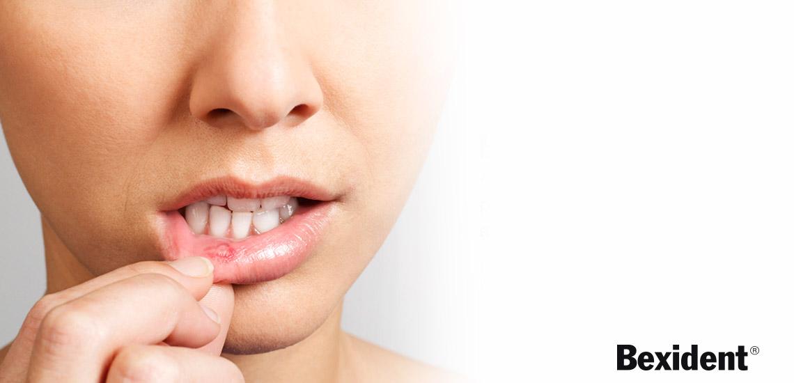 ¿Llagas bucales? Eliminalas con Bexident Aftas | Farmacia Jiménez