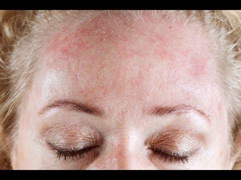 Dermatitis Seborréica Facial