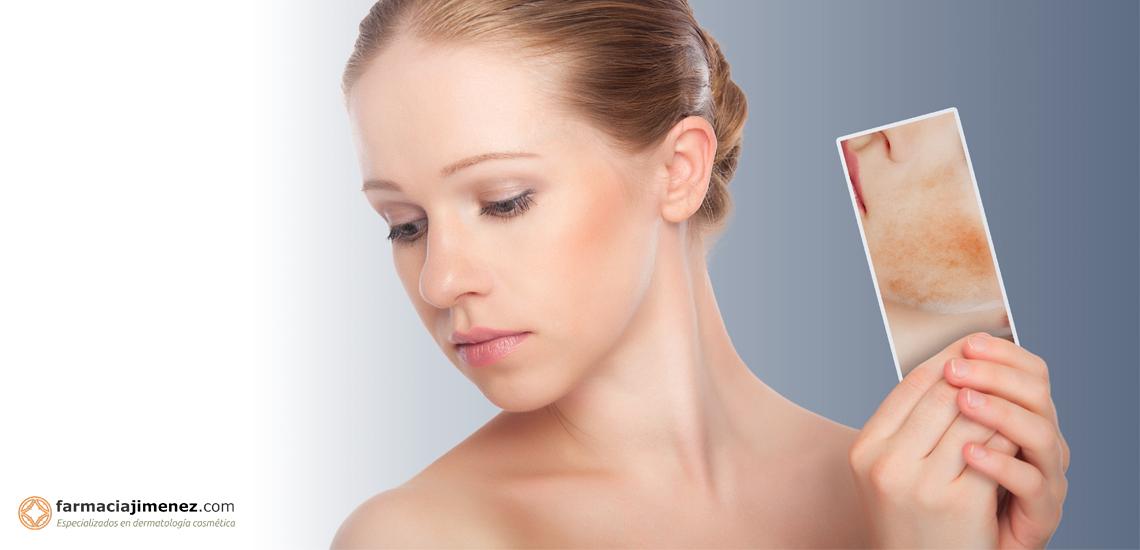 Dermatitis (I): Dermatitis Atópica