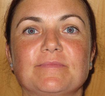 Tratamiento manchas faciales y luminosidad