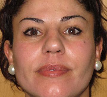 Tratar manchas de la cara y eliminar grasa
