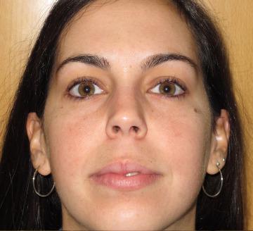 Tratamiento piel grasa y acné